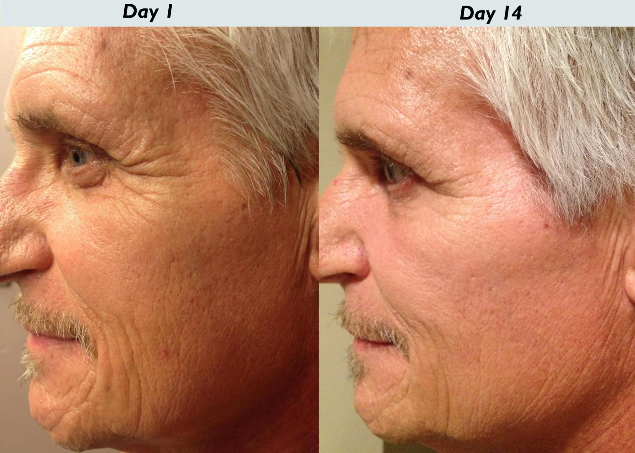 More Real Results with NeriumAD! Contact me for a free 5 day ...