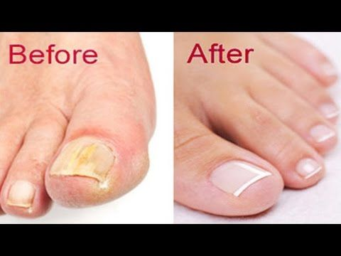How to Get Rid of Toenail Fungus Fast and Naturally - YouTube ...