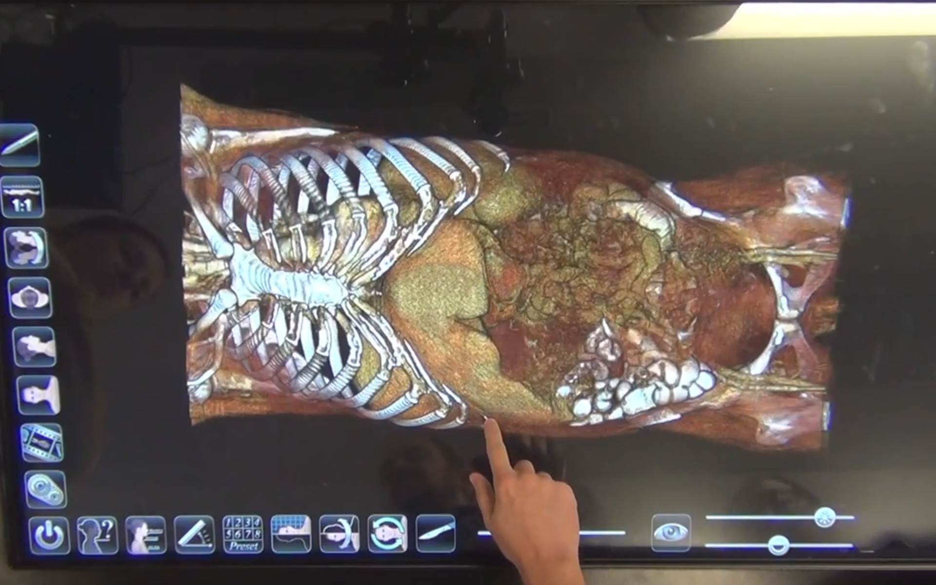 Anatomage Table Anatomy Review by Alan Detton (Video) Stanford University