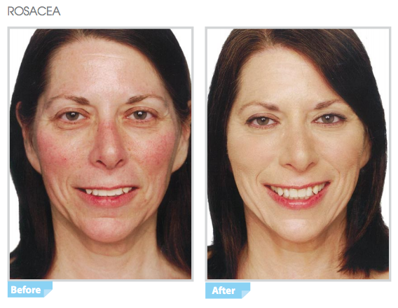 The best rosacea cosmetics combine effective gentle