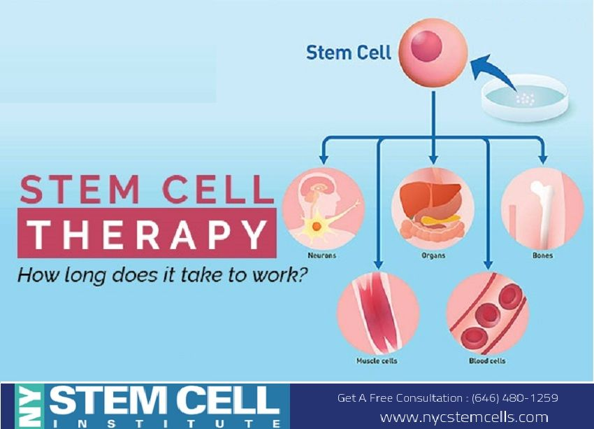 How long does stem cell therapy take to work stem cells
