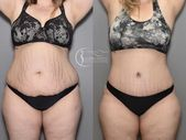 Liposuction Before and After     How does Lipo work  Lipo