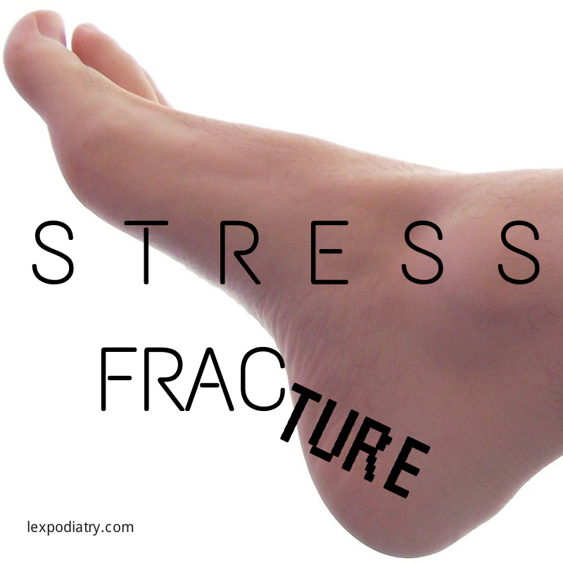 Stress Fracture | Try this | Stress fracture ankle, Stress
