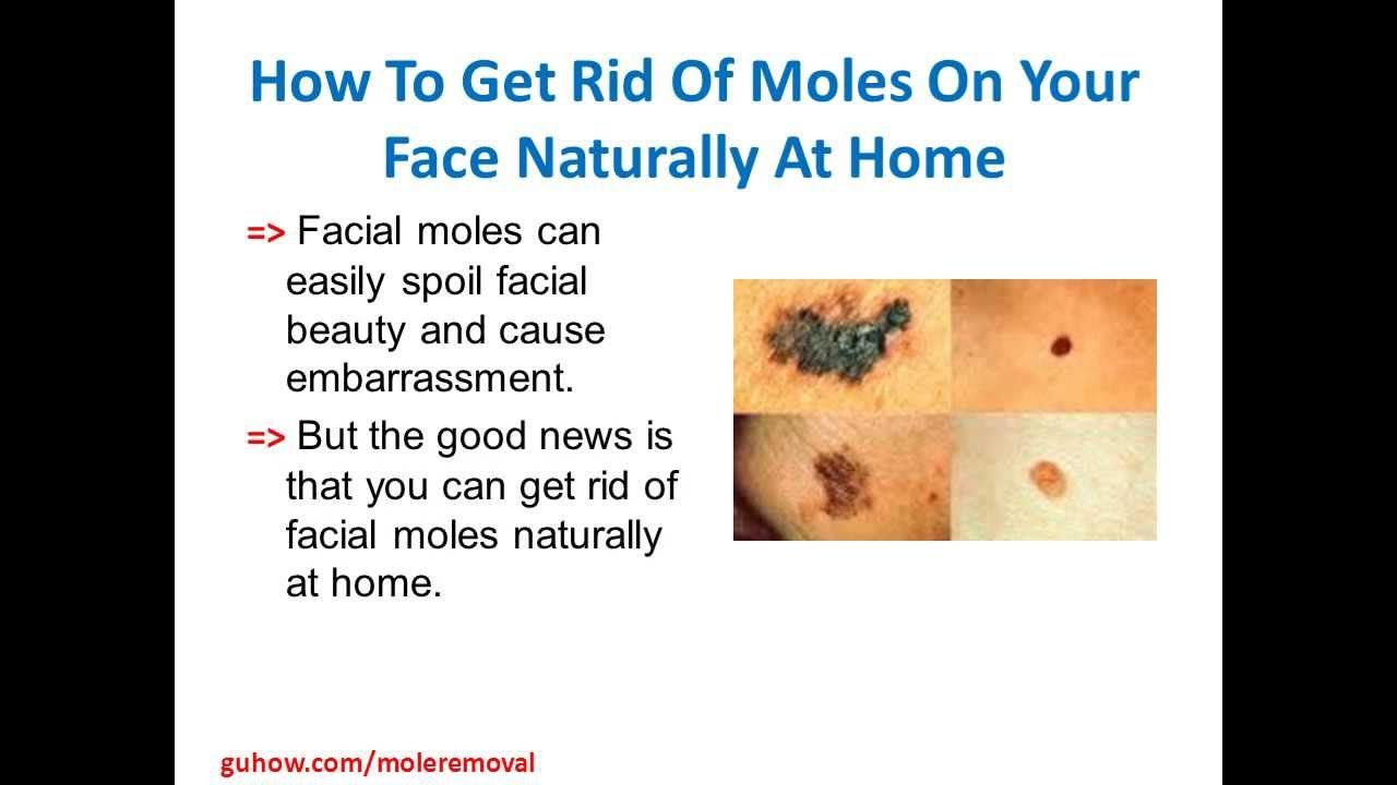 How to get rid of moles on your face naturally at home