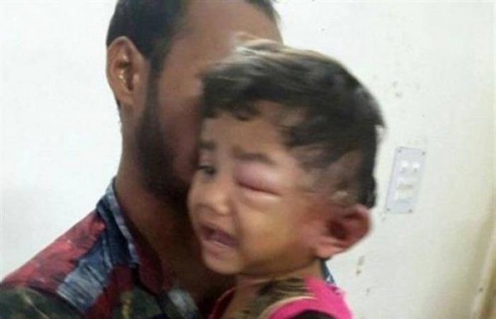 مصر24 - عانت من آلام شديدة في أذنها.. وبعد التشخيص الدقيق كانت المفاجأة! - مصر 24