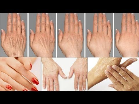 5c51dbfd1b7ed277ca7eb721642e7d44 - How To Get Rid Of Veins On Your Hands