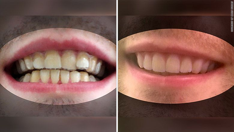 College student 3d prints his own braces diy braces diy