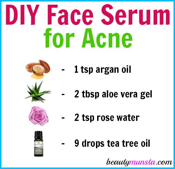 Homemade Face Serum for Acne - beautymunsta - free natural beauty hacks and more! #homemadefacelotion