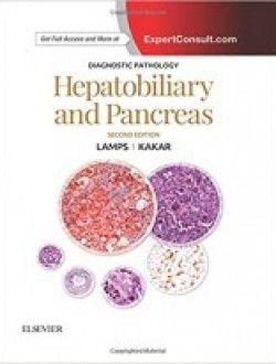 Diagnostic Pathology Hepatobiliary And Pancreas 2e Pdf Download Here Pathology Pancreas E Book