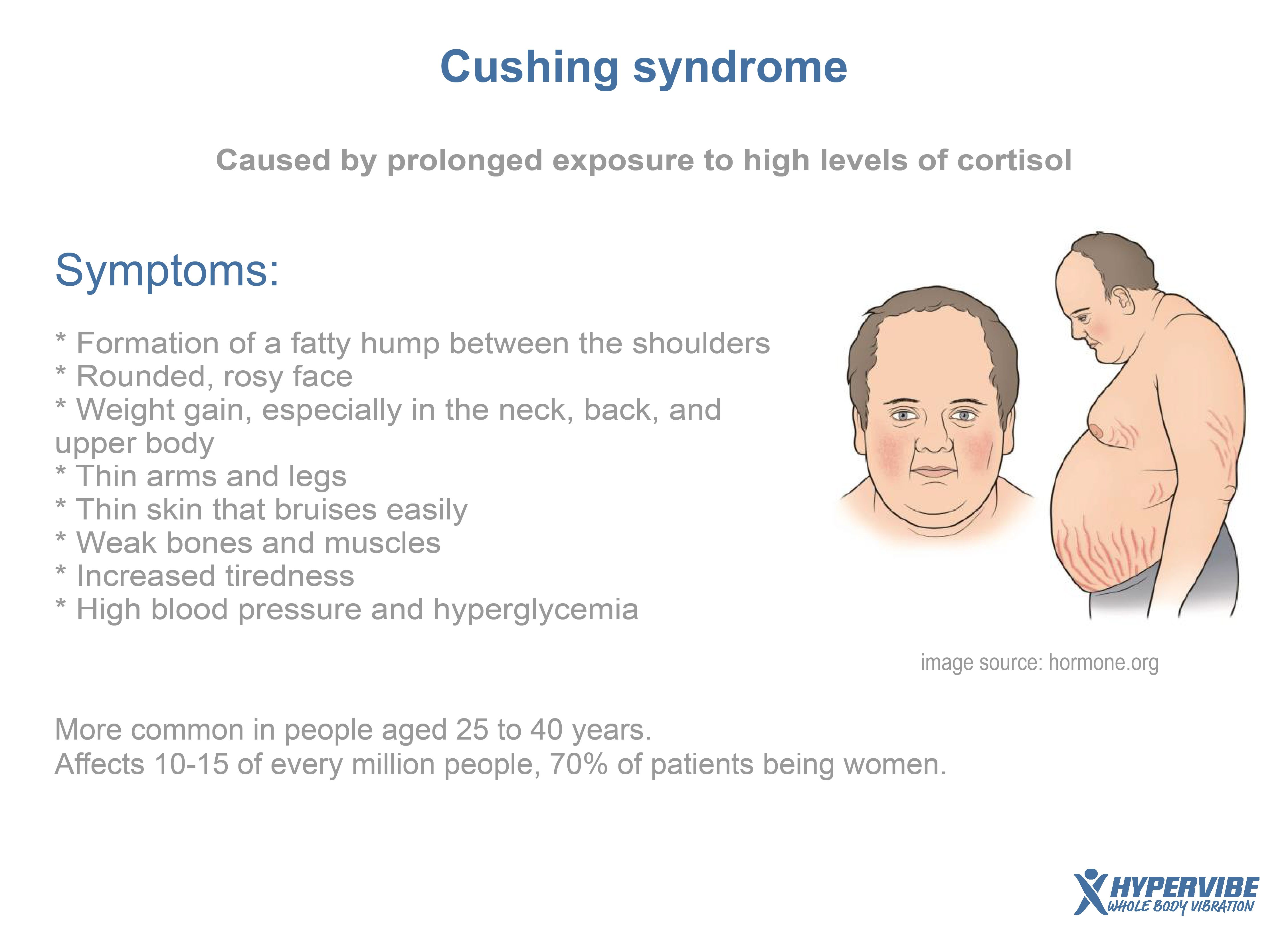 Cushing syndrome #health #cortisol