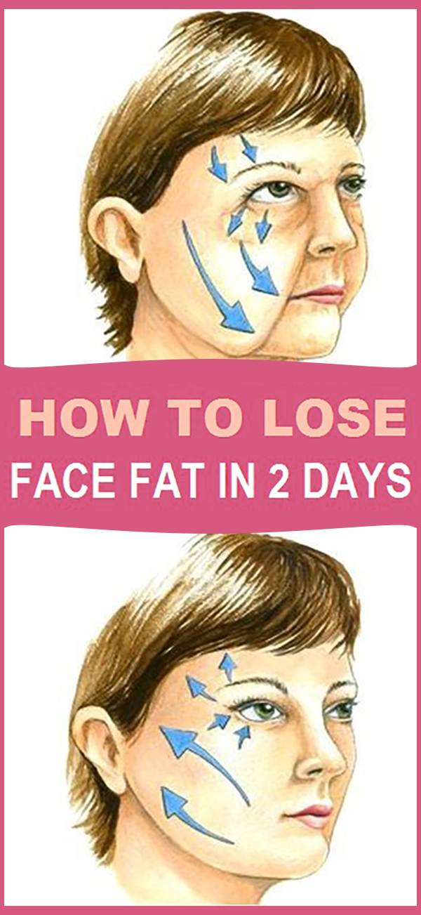 does your face get fat first