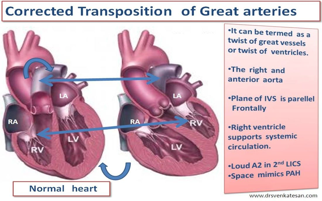 Image result for transposition of the great vessels | Nursing stuff ...