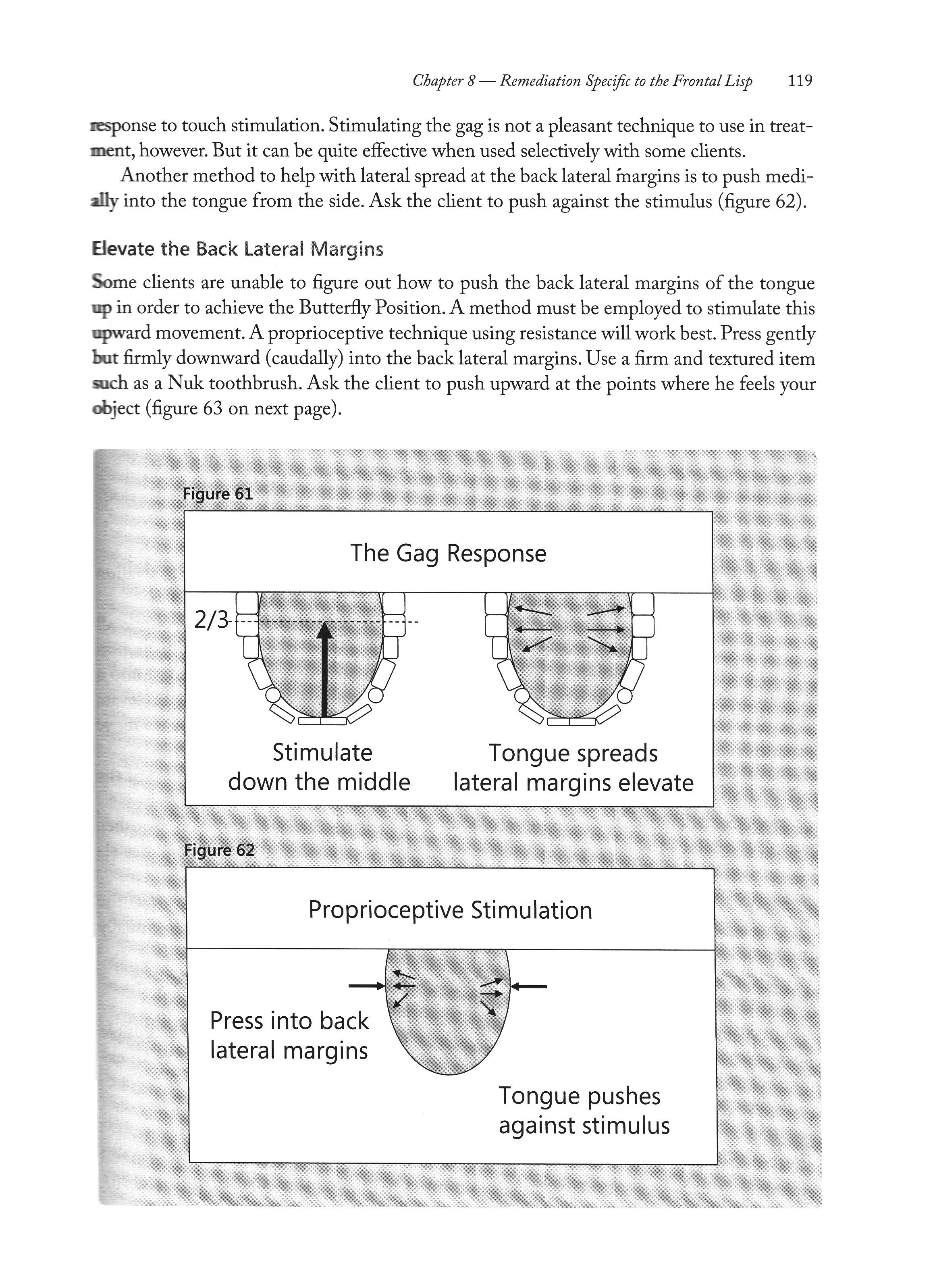 Gag response / Proprioceptive Stimulation from Frontal Lisp, Lateral ...