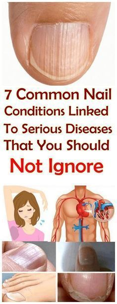 These 7 Conditions Of Nails Linked To Serious Diseases That you Shouldn't Ignore  #wieghtloss  #beau...