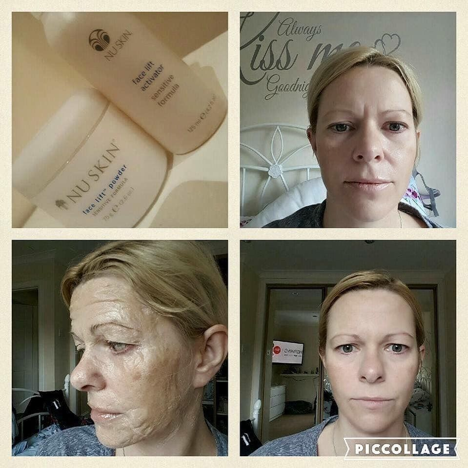 Becky On Instagram Look At The Difference Facelift 30minutes Face Skin Antiaging Youthful Nuskin Fabulous Fabfour In 2020 Nuskin Botox Brow Lift Skin