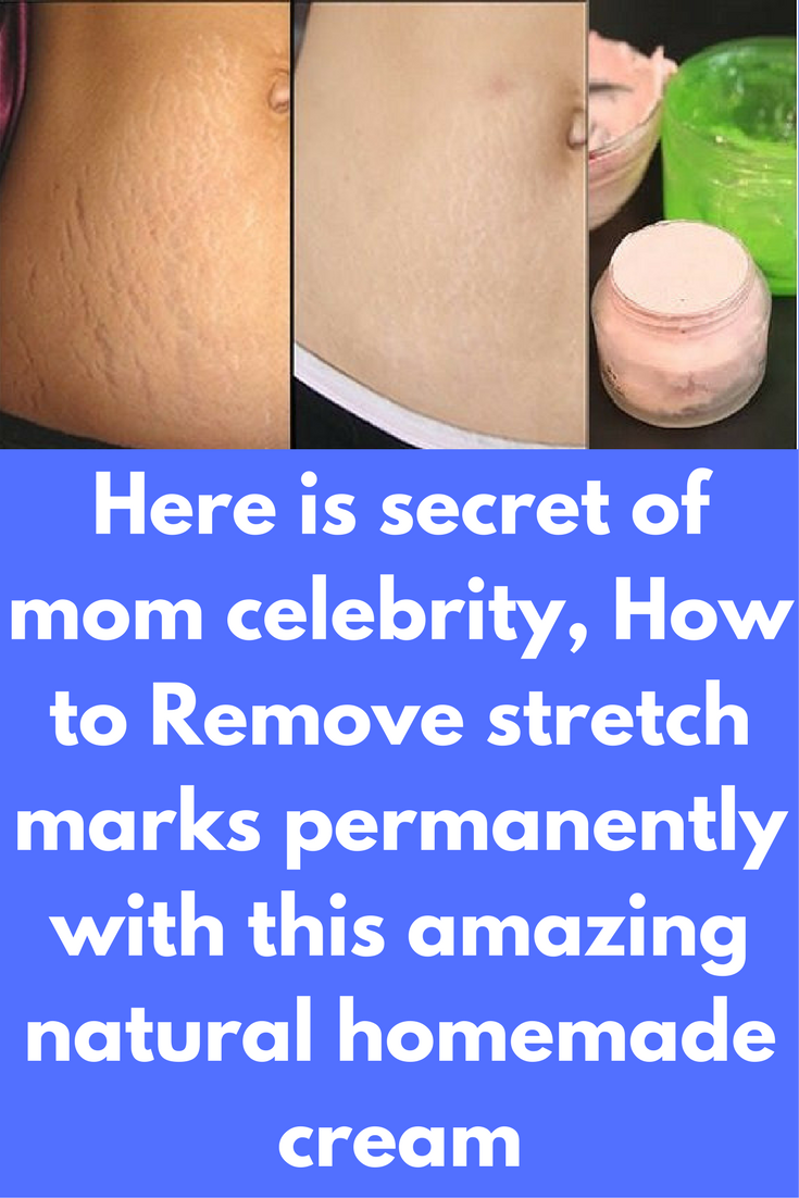 Here Is Secret Of Mom Celebrity How To Remove Stretch Marks