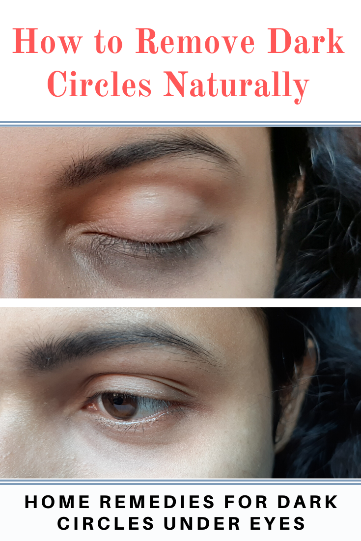 How to remove dark circles naturally Home remedies for