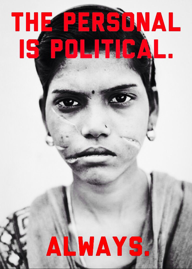 """This girl was beaten and lacerated for earning her husband an """"insufficient"""" dowry in India. The personal is political. Always. #feminism #genderparity #equalrights"""