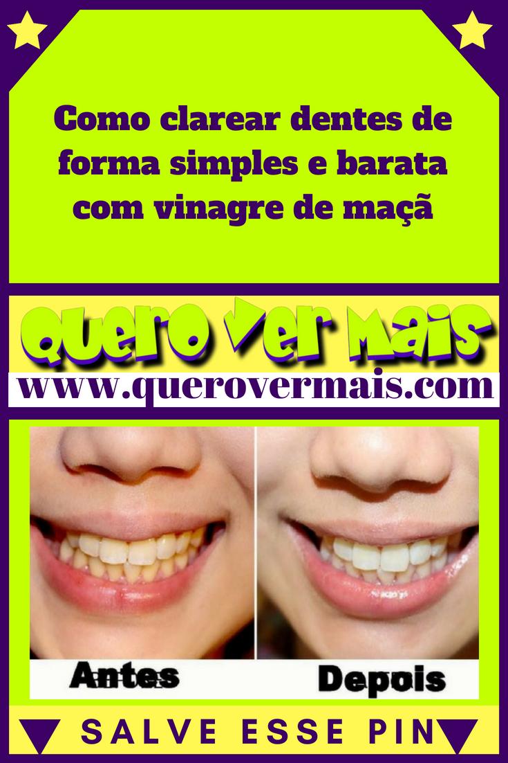 Tag Como Clarear Os Dentes Com Vinagre De Maca