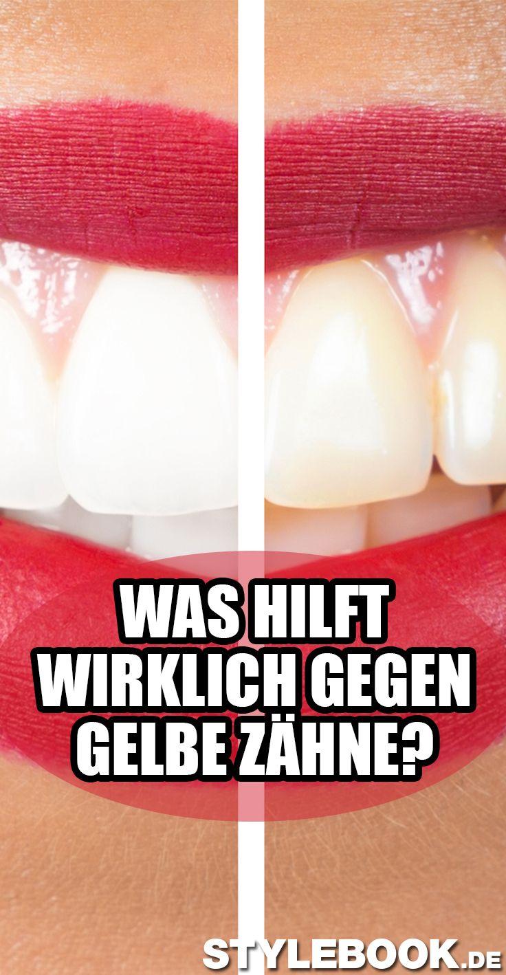 Verfärbte Zähne? So wird dein Lächeln wieder strahlend