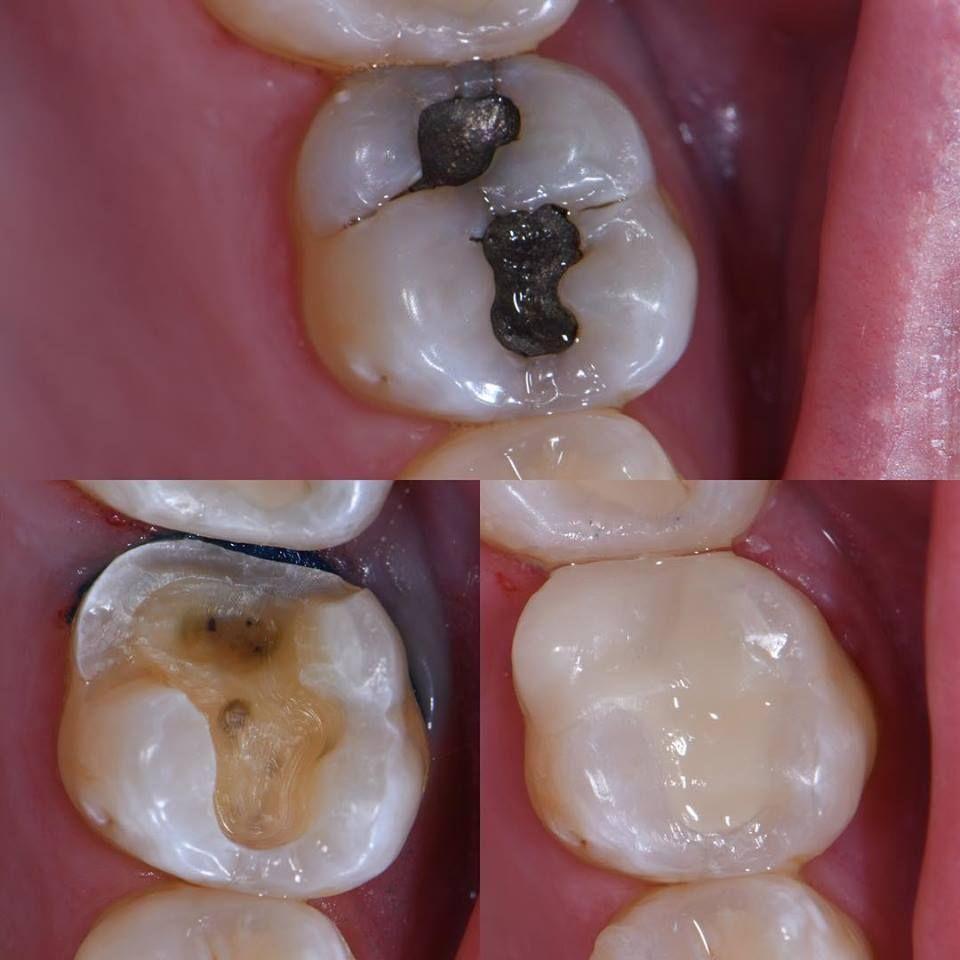 Teeth In A Day Cerec Gilbert Az Family Dentistry Teeth In A Day Cosmetic Dentistry