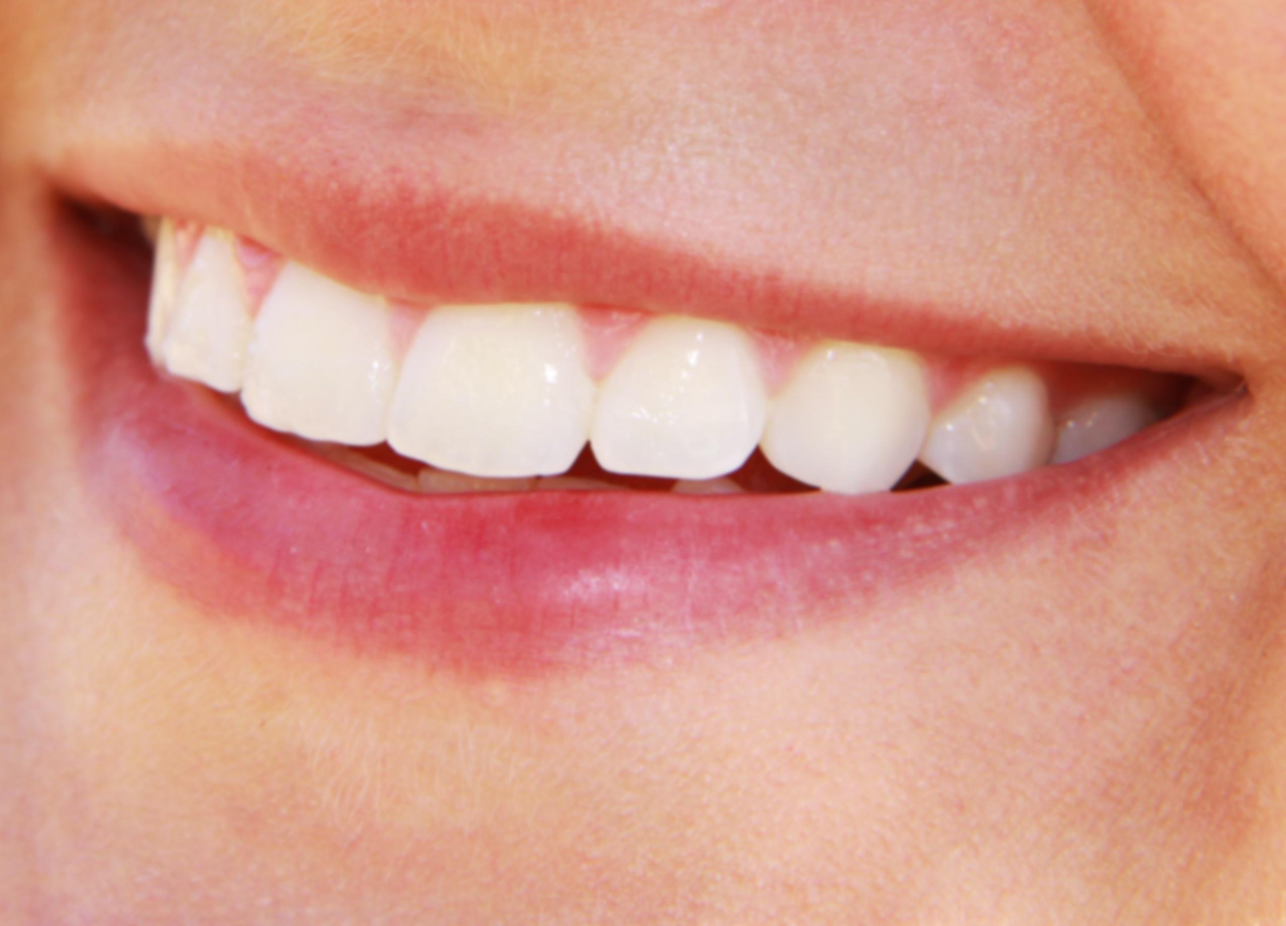 Diga As Pessoas Enquanto Elas São Importantes: Como Acabar Com Os Dentes Amarelados
