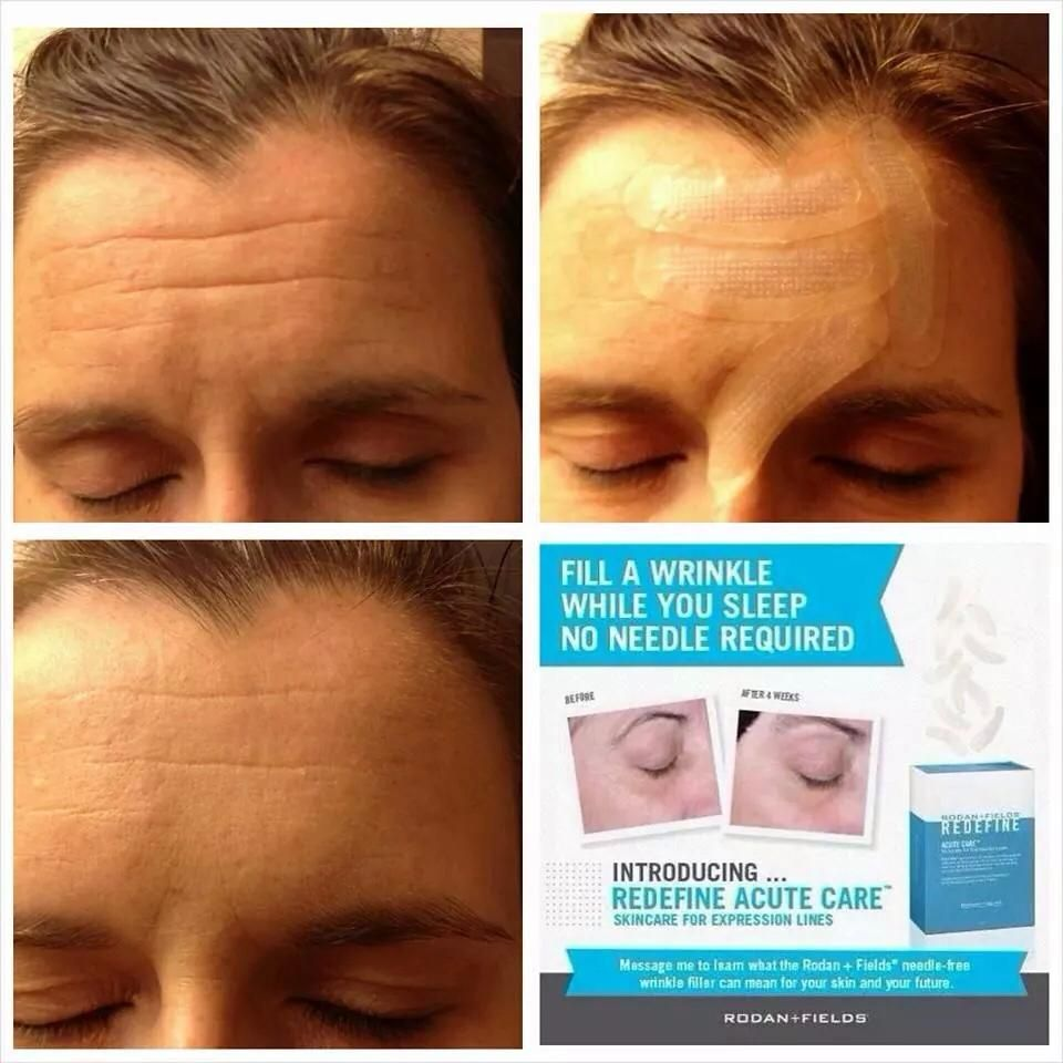 Dermatologist Created Skincare Products Rodan Fields Rodan And Fields Acute Care Rodan