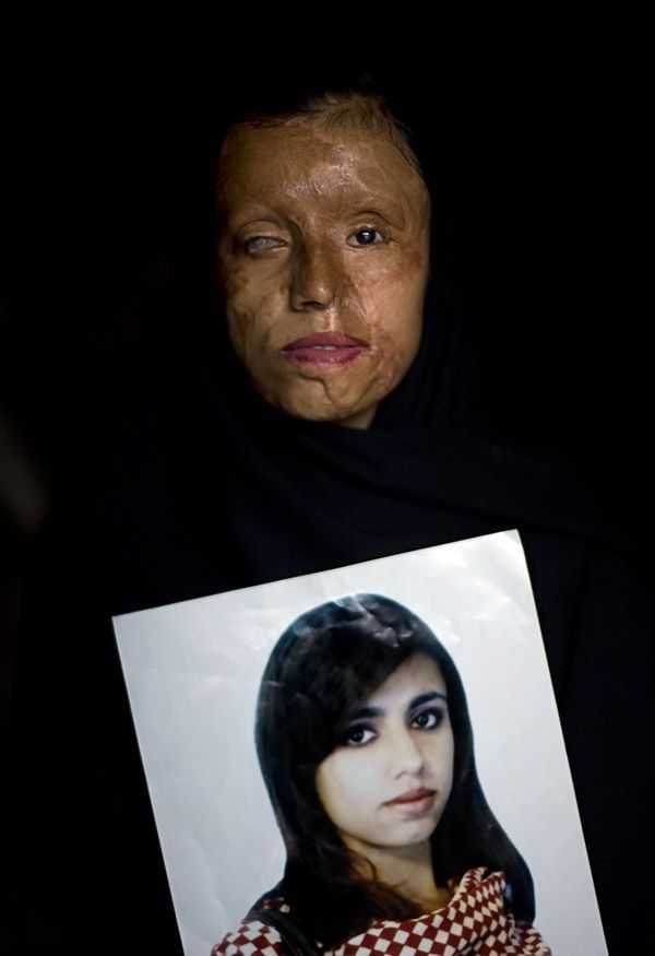 Saira Liaqat, 26, poses for the camera as she holds a portrait of herself before being burned, at her home in Lahore, Pakistan, Wednesday, July 9, 2008. When she was fifteen, Saira was married to a relative who would later attack her with acid after insistently demanding her to live with him, although the families had agreed she wouldn't join him until she finished school. Saira has undergone plastic surgery 9 times to try to recover from her scars.