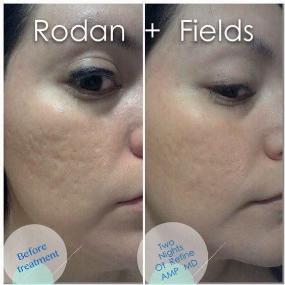 Want glowing skin? 60 day money back guarantee. Check out my FB page for before/after pictures and details! facebook.com/tham.le.52 #healthy #skin #exfoliate #acne #sunspots