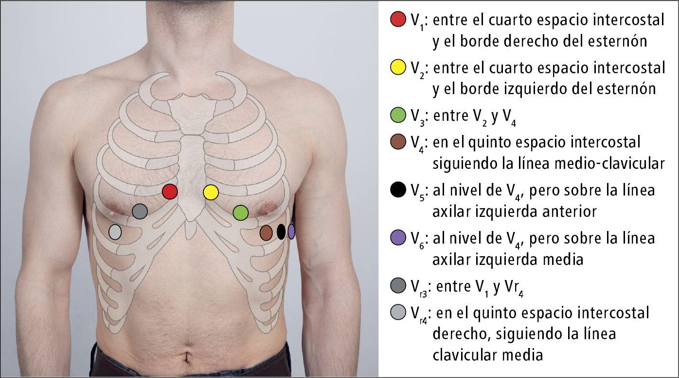 Pin En Salud Monitorización Cardiaca Ecg