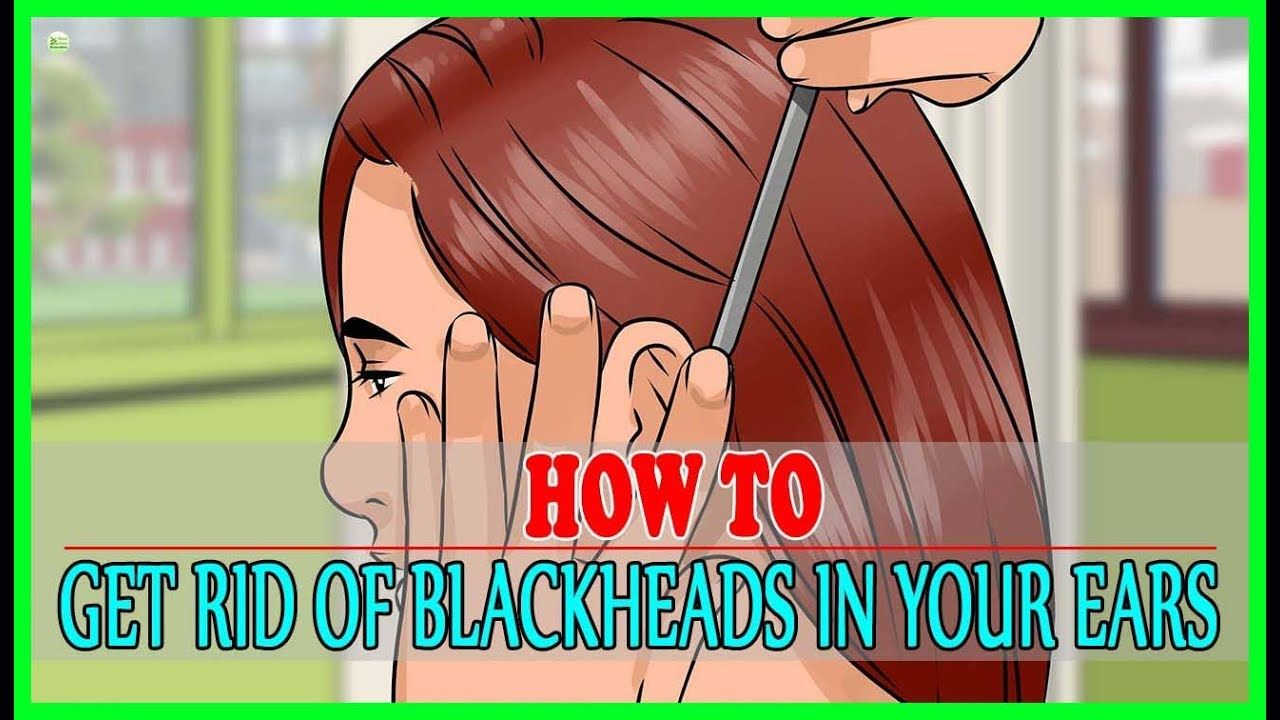 Blackheads are troublesome and irritating and even more