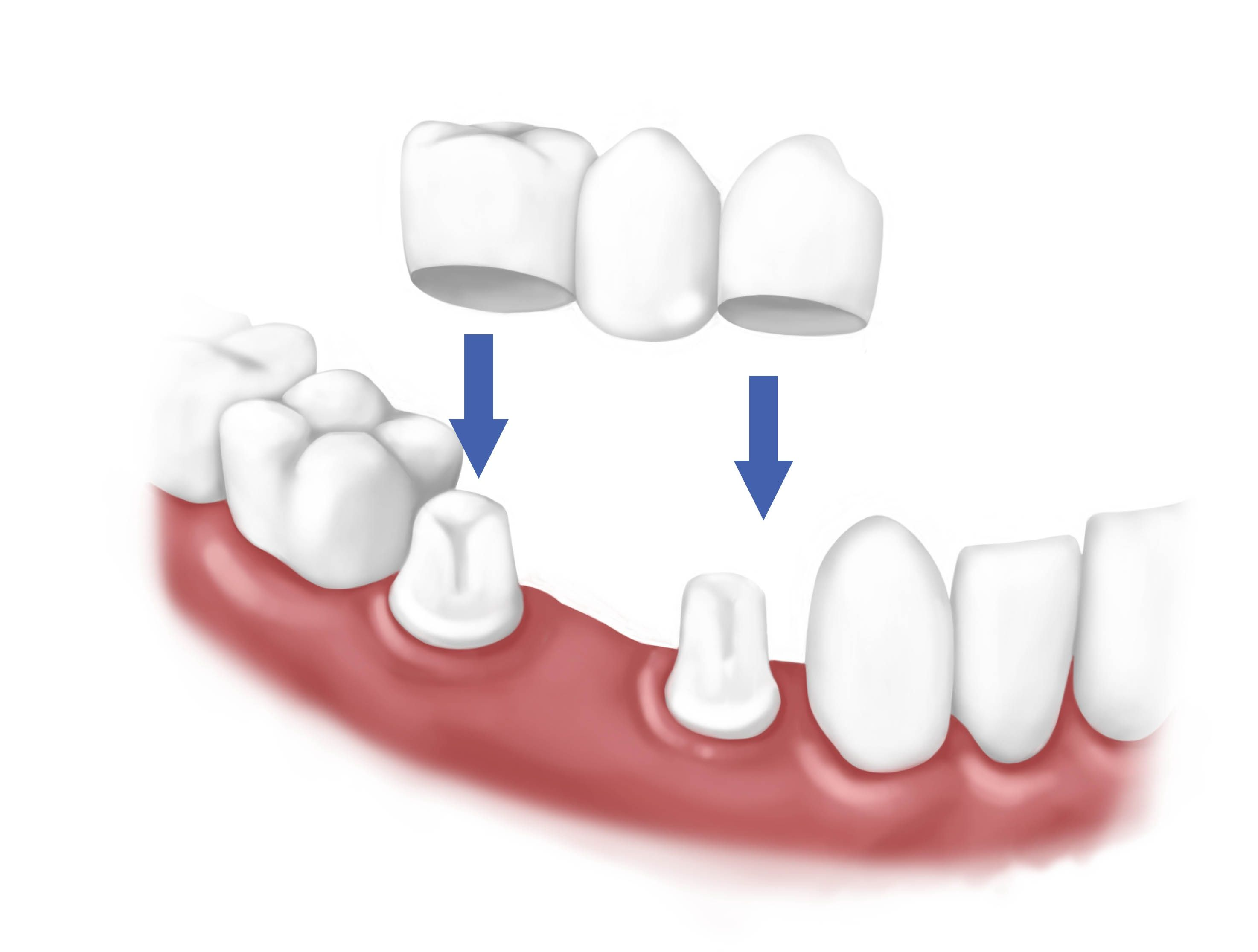 Image result for How to Maintain Good Oral Health and Dental Restorations