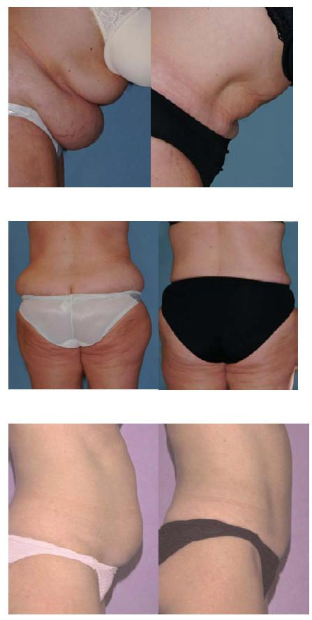 Mesotherapy is a great alternative to invasive procedures such as mesotherapy is a great alternative to invasive procedures such as liposuction solutioingenieria Choice Image