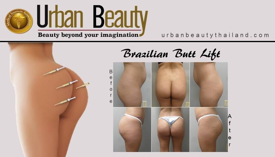 Brazilian Butt Lift Prices 67
