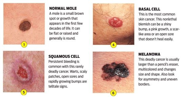 What are the symptoms of skin cancer?