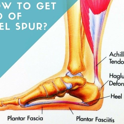 How To Get Rid Of Bone Spur In Elbow