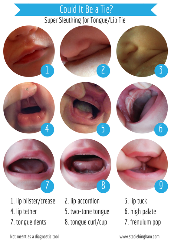Physical Features That Can Be Present With A Tongue Or Lip