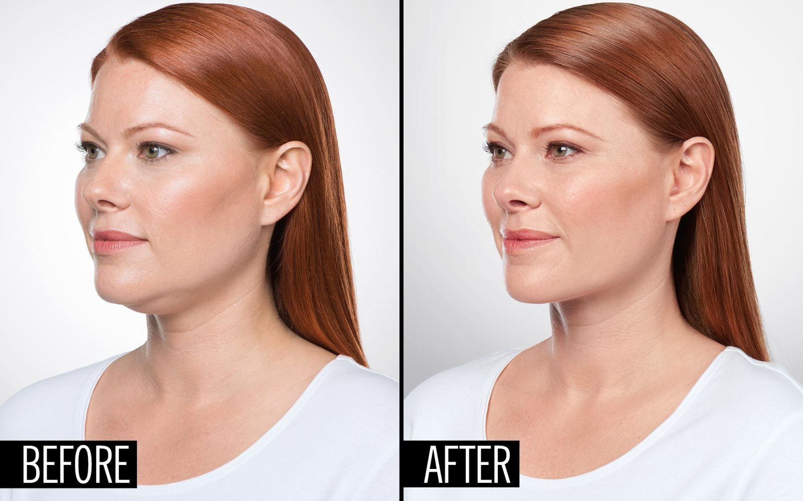 Eliminate your double chin with with images double