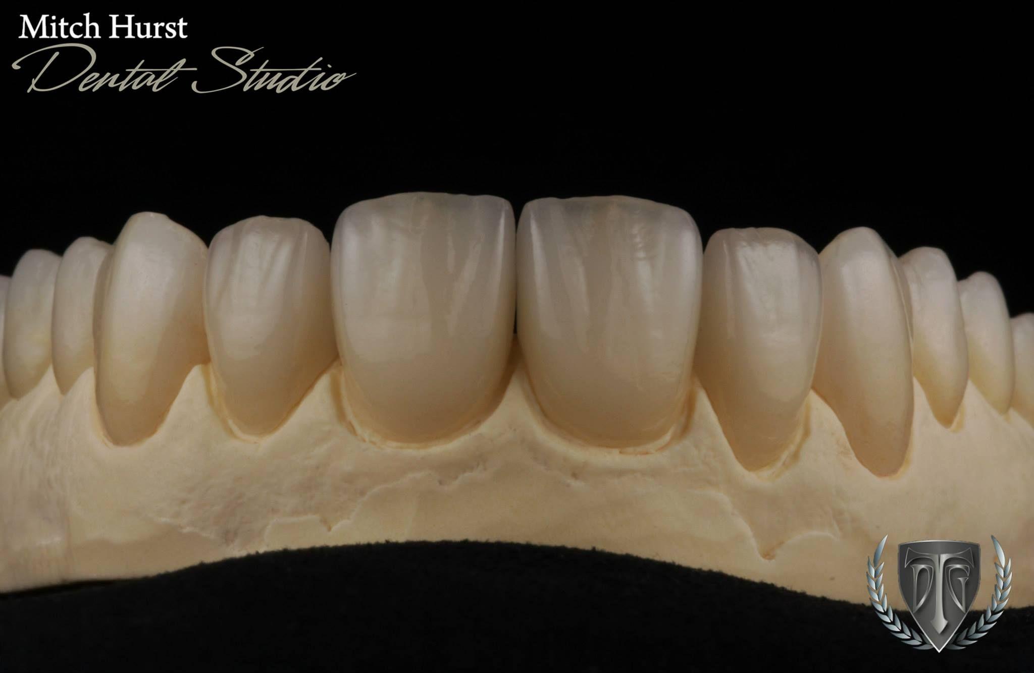 Dental Crowns Cosmetic Dentistry Beautiful Smile Ceramic Restoration Hurstdentalstudio Com Protese Dentaria Dentes