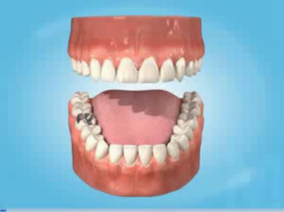 Discover dentists dry socket with images dry socket