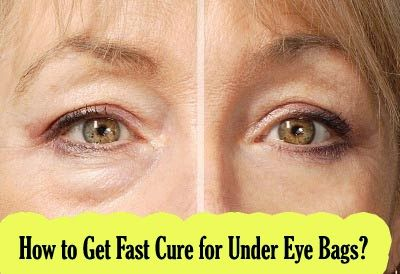How To Get Fast Cure For Under Eye Bags Makeup Under