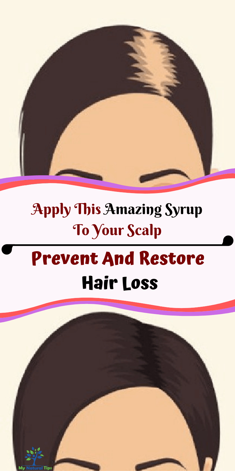 Treatment Restores Sociability In >> Prevent And Restore Hair Loss With This Amazing Syrup By
