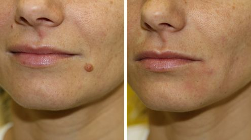 Laser warts removal uses an intense beam of light, or laser, to burn