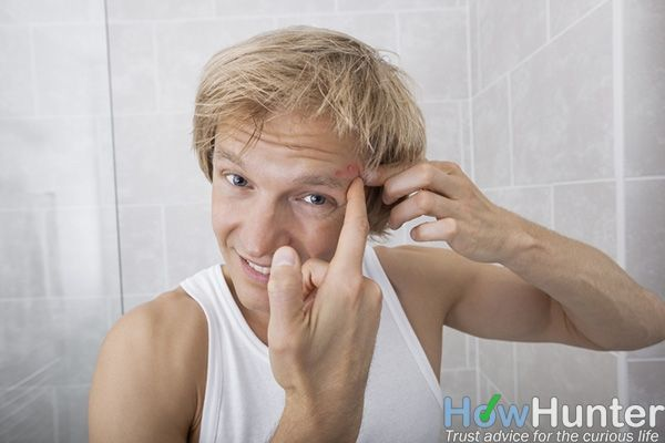 what gets rid of zits overnight
