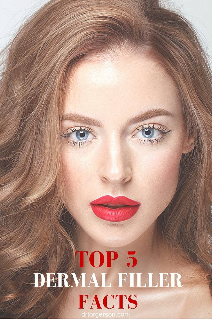 Face the facts top 5 dermal filler facts here is some essential face the facts top 5 dermal filler facts here is some essential injectable filler solutioingenieria Gallery