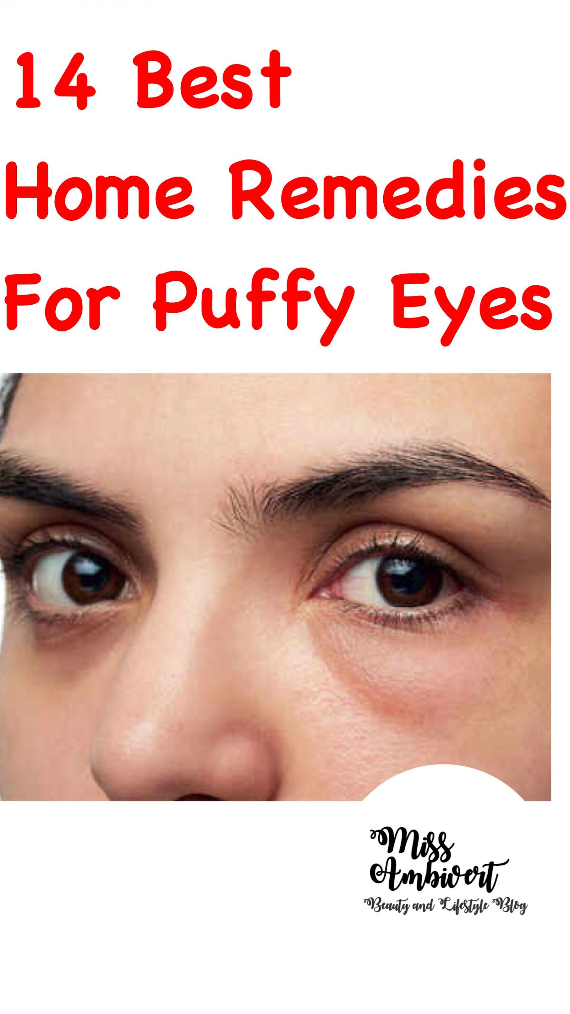 5cf728d47863dd112a8ecf395012fdfc - How To Get Rid Of Tired Looking Eyes Naturally