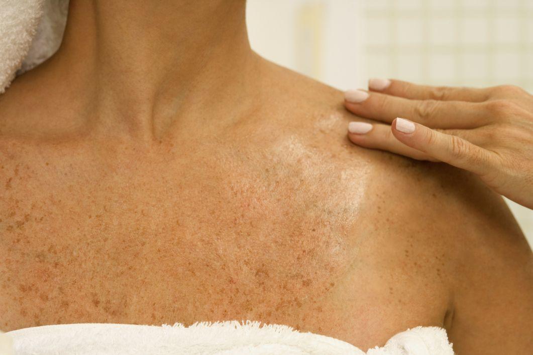 Cómo quitar manchas en la piel