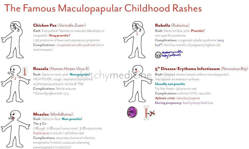 childhood rashes differentials dermatology pinterest emergency rh pinterest com Rash From Nervousness Nervous Rash Symptoms