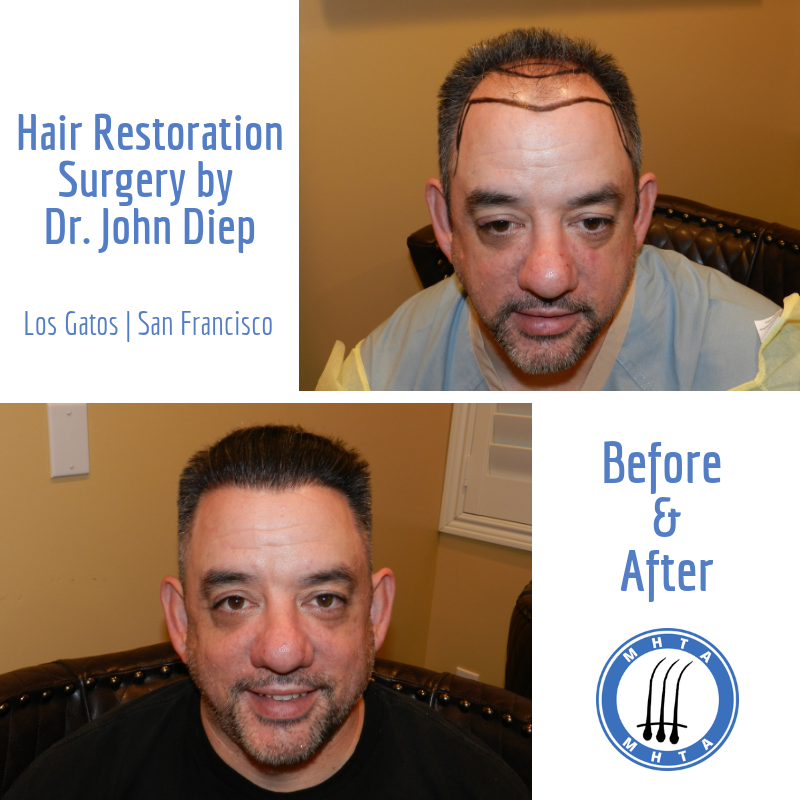 We love this transformation! This patient was classified