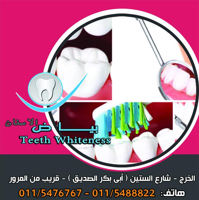 التهاب عصب السن ان من أفظع آلام الأسنان والتي أرقت الكثيرين بسبب شدتها هو ألم التهاب عصب السن فهو ألم مستمر لا يهدأ ليل نهار وقوي لدرجة الجنون ويزد Teeth